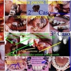 Gustavo Petti, Parodontologo, Cagliari,Chirurgia Parodontale Ossea, Triforcazioni, Fratture, Difetti Parodontali
