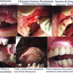 Gustavo Petti, Parodontologo, Cagliari,Chirurgia Parodontale Estetica, Inestetismo