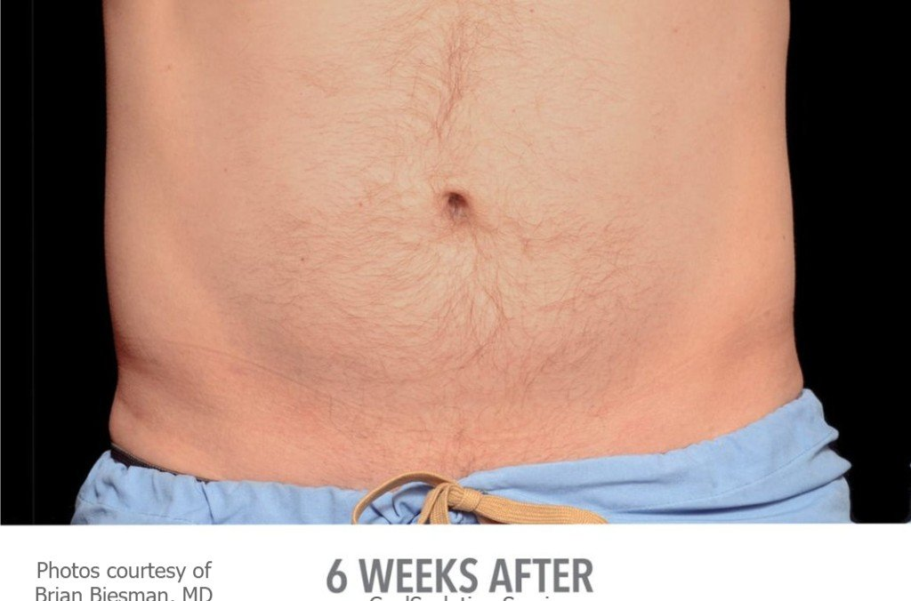 San Diego Coolsculpting Fat Removal Specials Ca