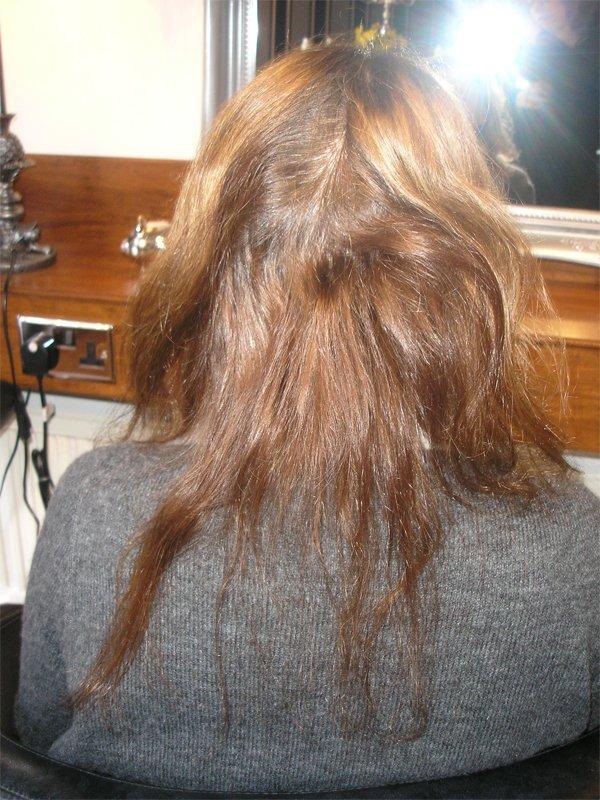 haphazard hair growth