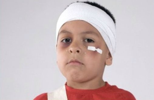 A boy with hurts on face and head