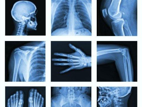 Radiology exams