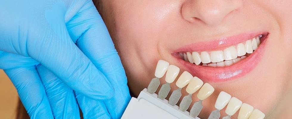 Studio dentistico - Breno - Brescia