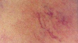 trattamento capillari