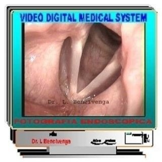 Video laringoscopia