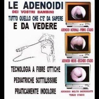 Le adenoidi