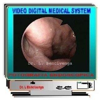Video fibro rinoscopia posteriore