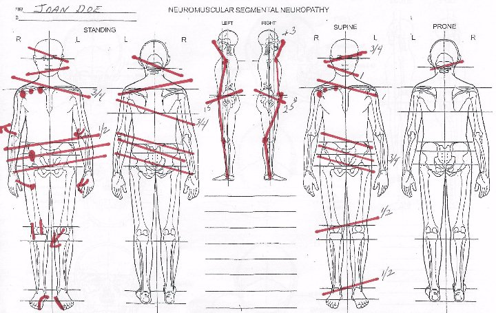 neuromuscular segmental neuropathy initial consultation human body balance lines