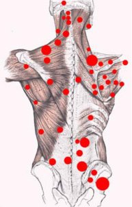 neurotherapy trigger point therapy skeletal body health massage