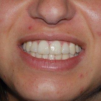 occlusione dentale
