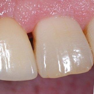 sbiancatura denti