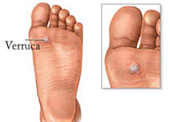 verruca-plantare metatarsalgia spina calcaneare fascite plantare piedi-con-spina-calcaneare Piede-piatto onicocriptosi alluce valgo neuroma-di-morton