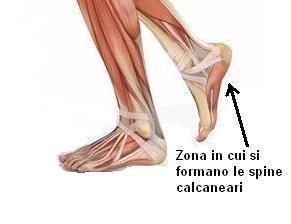 piedi-con-spina-calcaneare