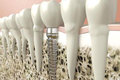 impianti dentari
