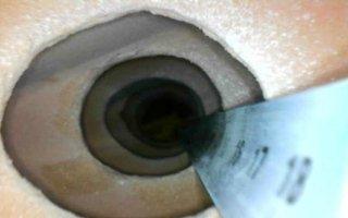 ispezione cavità