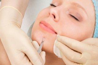 Specializzati in chirurgia dermatologica
