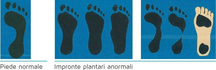 Diversi tipi di malformazione del piede a Torino e Provincia