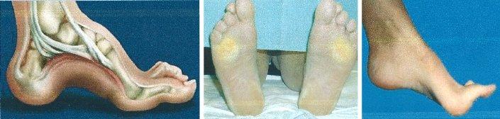 Comuni deformazioni del piede a Torino