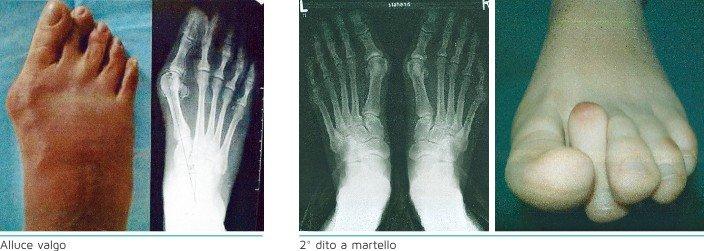 Alluce valgo e deformazione del piede a Torino