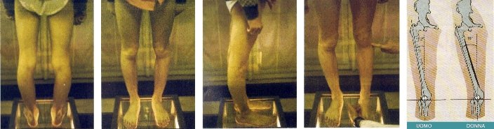 Caso di strabismo del ginocchio a Torino