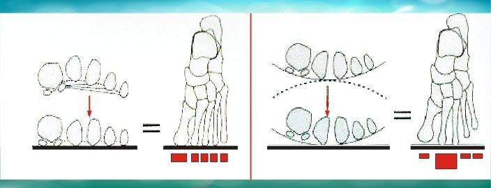 Illustrazioni tecniche della metatarsalgia