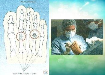Cause biomeccaniche del dolore ai piedi