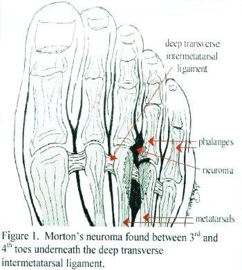 Illustrazione medica del neuroma di Morton in Piemonte