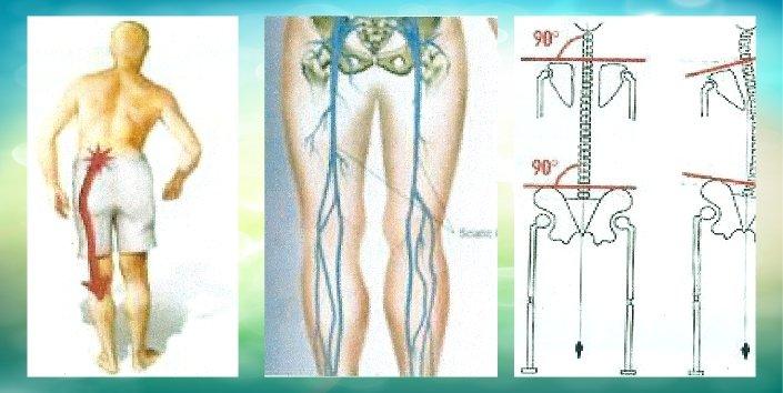 Illustrazioni mediche della sciatica lombare a Torino