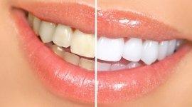 sbiancamento dentale, sbiancamento denti
