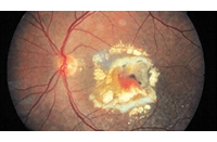 retinografia digitale a colori