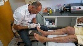 traumatologia, trattamenti piede, patologia dell'alluce valgo