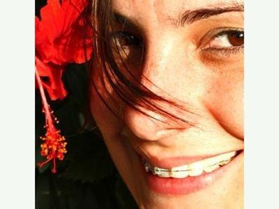 odontoiatria estetica bergamo