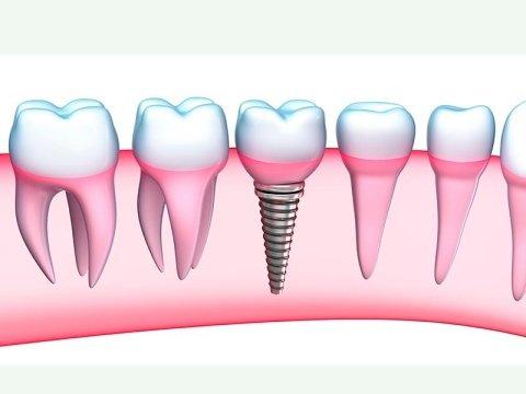 protesi dentarie bergamo