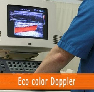 Eco color Doppler