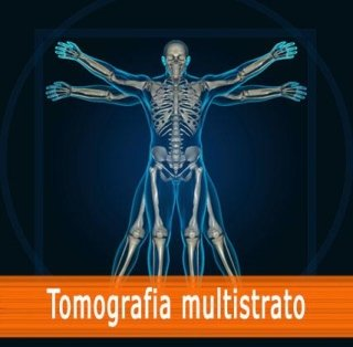 Tomografia multistrato