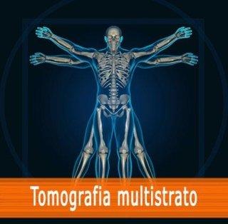 Tomografia multistrato
