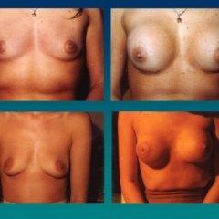 ferrante, chirurgia plastica, ricostruttiva, estetica, chirurgia generale, mastoplastica, rinoplastica,