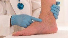 biopsie cutanee