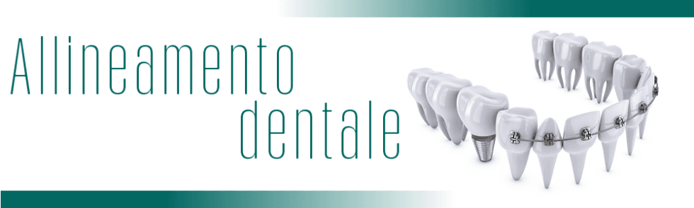 Allineamento dentale