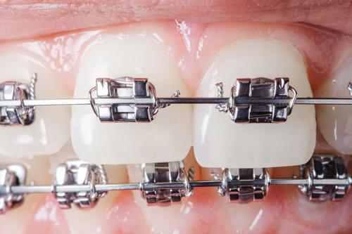 Apparecchi dentali