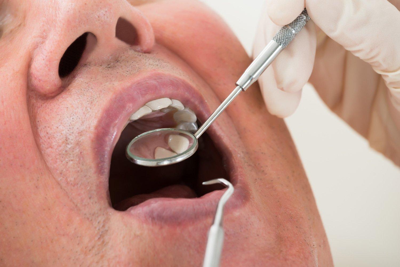 Controllo carie presso Studio Dentistico Graziani a Faenza