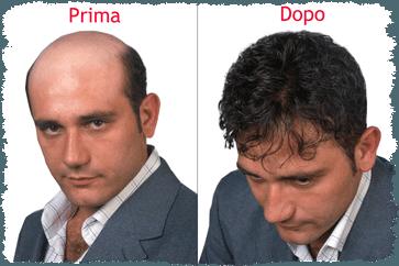 2 immagini di un signore con occhi azzurri prima e dopo una tinta di capelli