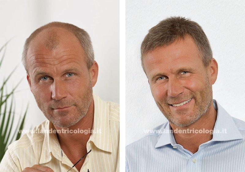 foto dei tre step, prima durante e dopo una tinta