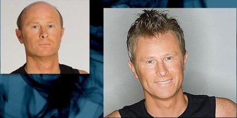 foto dimostrativa dei 3 cambiamenti dopo una tinta di capelli