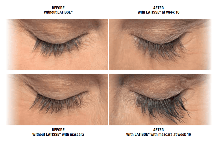 Latisse Eyelash Treatment - Tacoma, WA