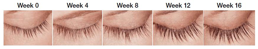 Latisse Eyelash Growth - Tacoma, WA