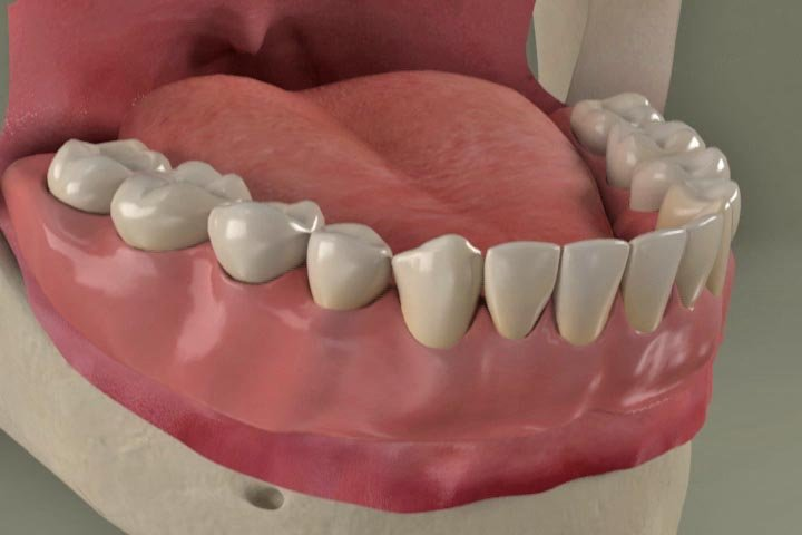 Dental Mini Implants Batavia, NY