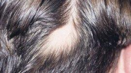 malattie sessuali, dermatiti, tumori della pelle