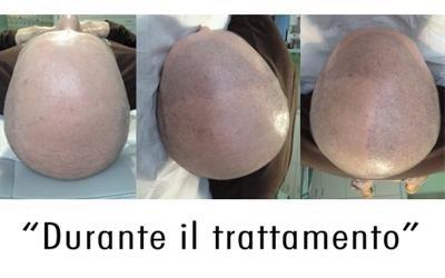 Tricopigmentazione Cuneo