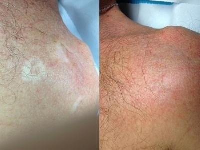 Cicatrici su spalla